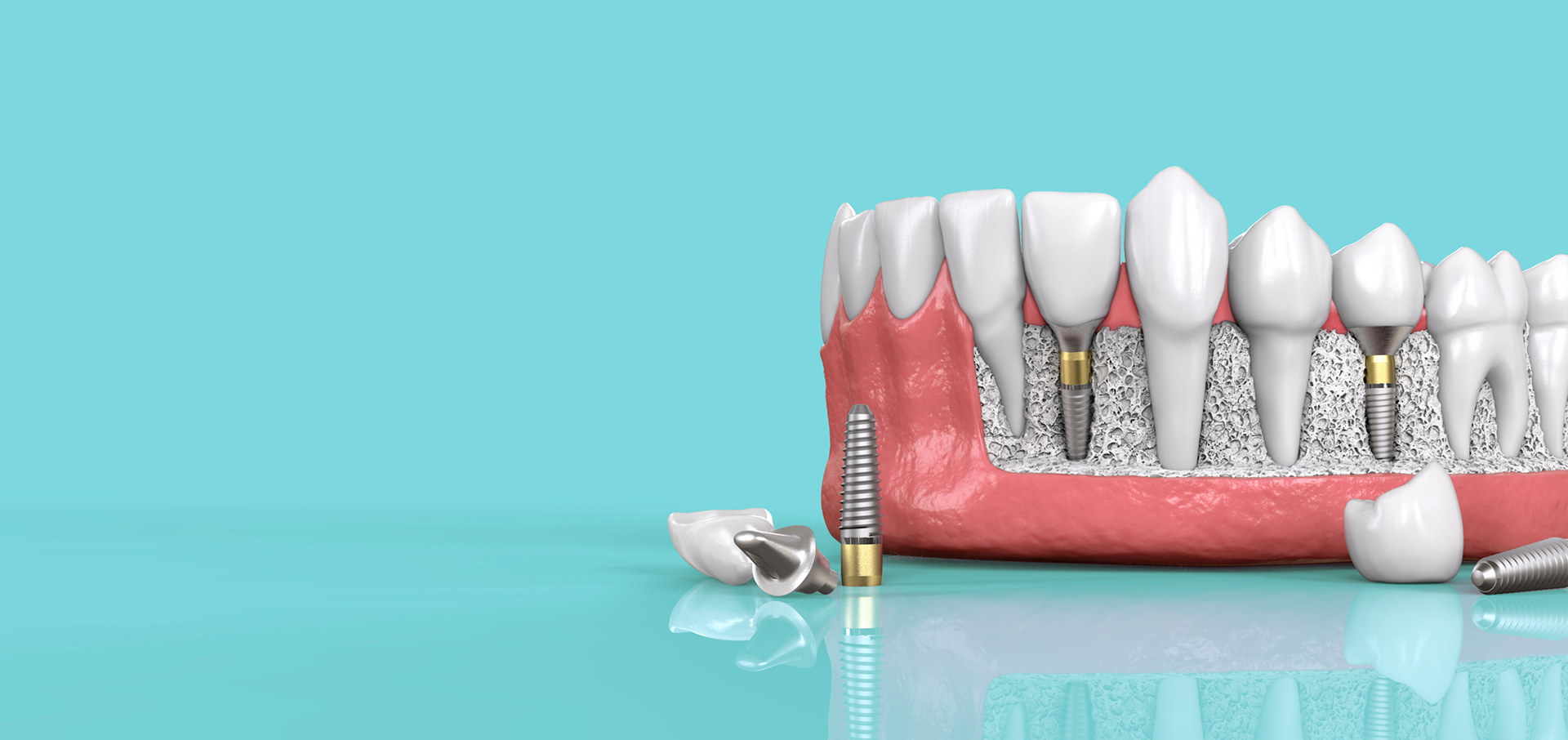 Best Dental Clinic in Noida