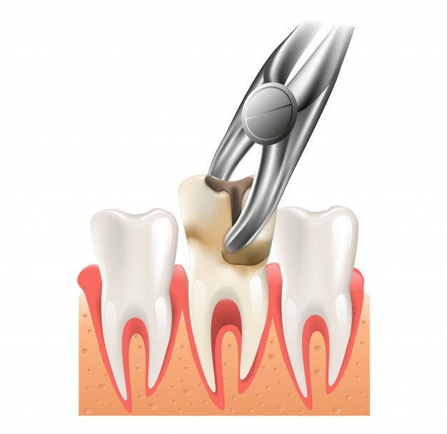 Painless Tooth Extraction Treatment Noida